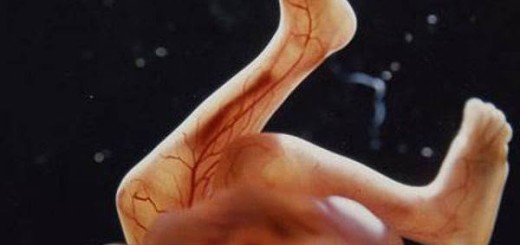 18-The skeleton consists mainly of flexible cartridge.A network of blood vessels is visible through the thin skin